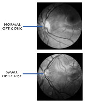 Normal vs. small optic discs
